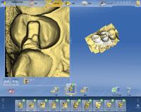 STEP2 コンピュータの3D画面上で修復物を設計し、院内で製作します