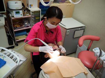 プラークコントロール ・歯石除去