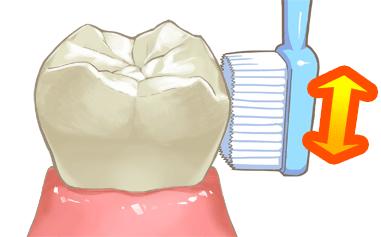 1.歯ぐきの検査・ブラッシング指導