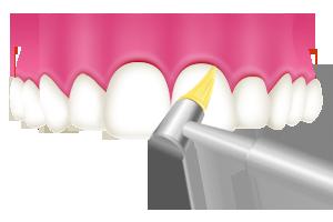 2.歯と歯ぐきの間を機械でお掃除