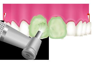 3.歯の表面のクリーニング