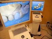 短期間・高品質・低価格の最新虫歯治療 セレックシステム