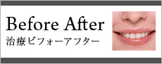 Bfore After 治療ビフォーアフター