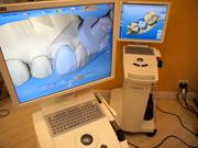 最新虫歯治療「セレックシステム」